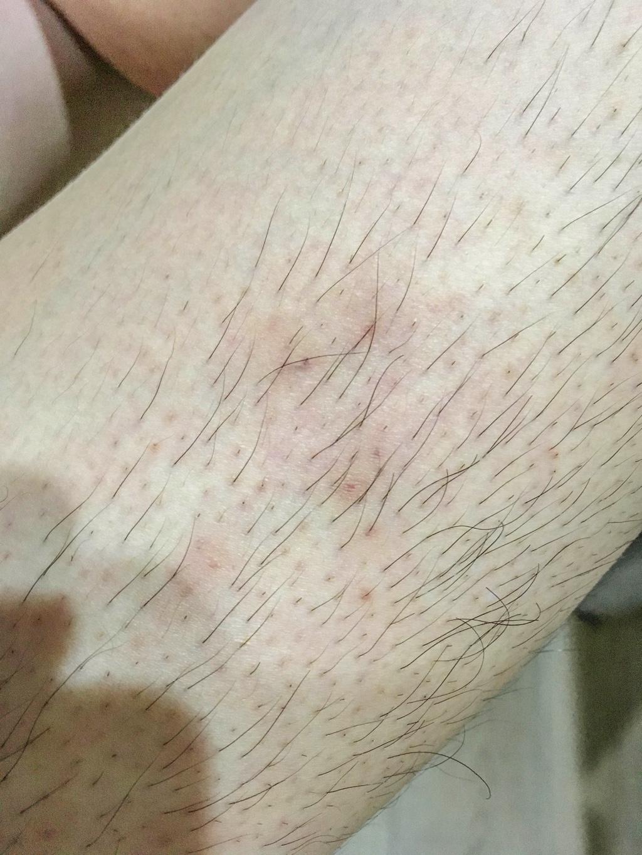 アットノンを塗布して1ヶ月後の毛嚢炎跡