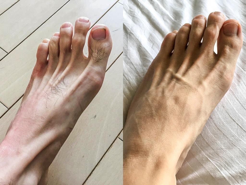 足の甲のビフォー・アフター