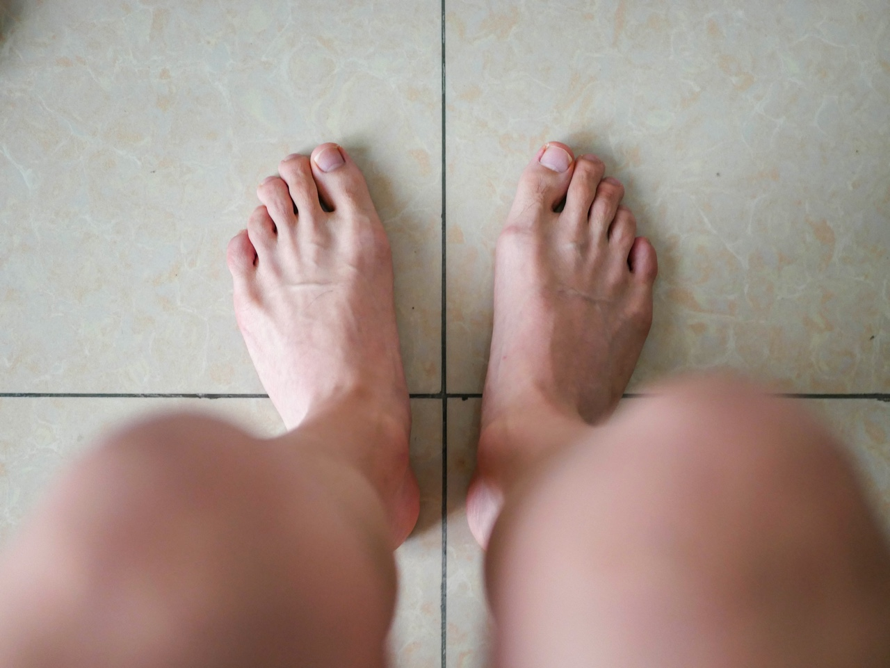 メンズ脱毛後の脚
